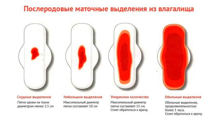 Месячные после кесарева сечения: при искусственном и естественном вскармливании, через сколько месяцев приходят первая менструация и сколько идет, причины обильных или скудных выделений