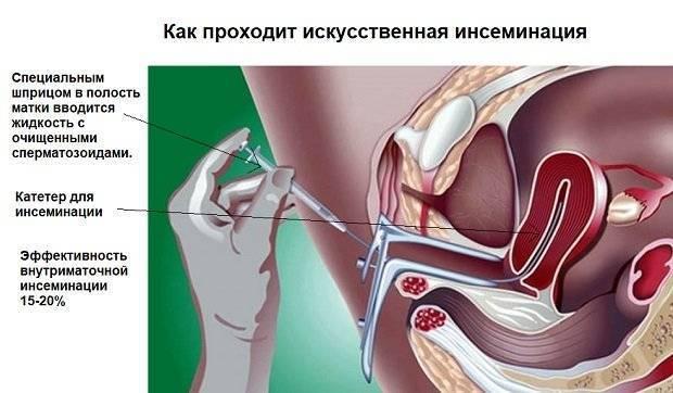 Внутриматочная искусственная инсеминация - показания и шанс на беременность | пуздрик.ру