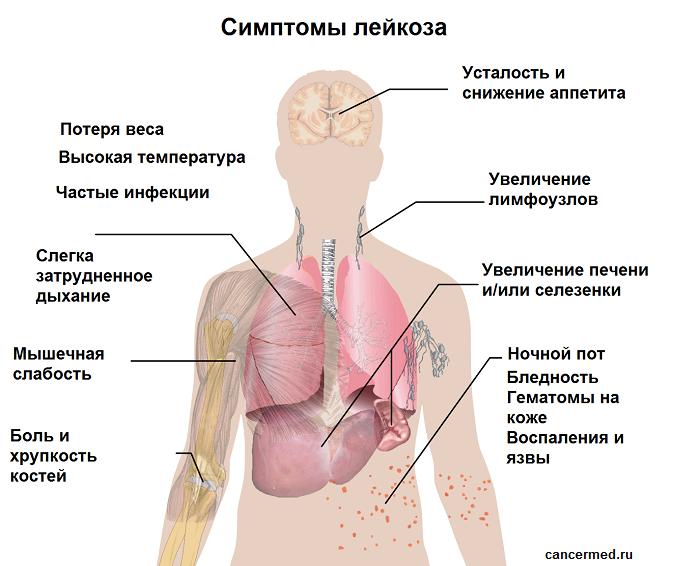 Симптомы лимфомы у детей