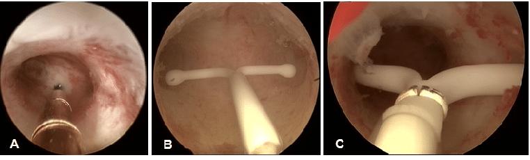 Удаление внутриматочной спирали, ответы врачей, консультация