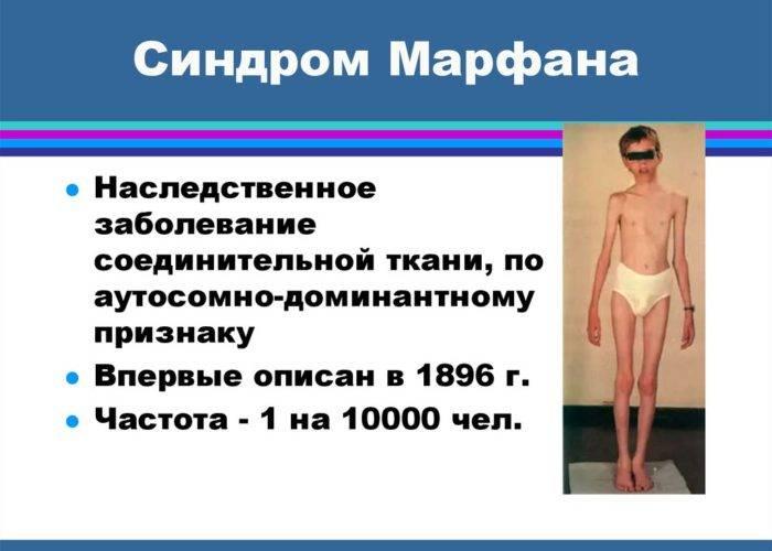 Дисплазия соединительной ткани у детей: симптомы синдрома с фото и лечение патологии | заболевания | vpolozhenii.com