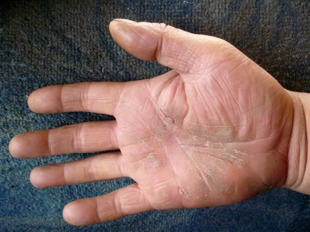Причины шелушения кожи на ладонях у детей и взрослых - что делать и средства лечения