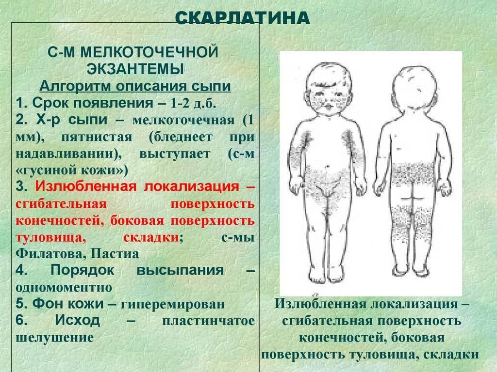 Симптомы инфекционной эритемы у детей с фото: как распознать и чем лечить болезнь? эритема инфекционная 5 инфекционная болезнь у детей