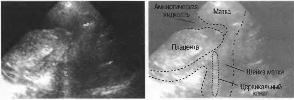 Локальный гипертонус миометрия по передней стенке при беременности