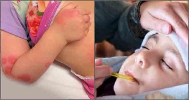 Укусы блох у ребенка: фото, опасность и что с этим делать