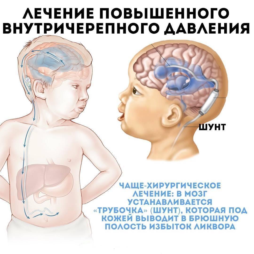 Внутричерепное давление у грудничков: причины, симптомы и лечение