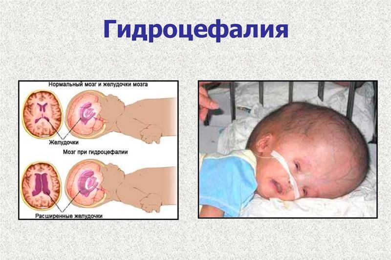 Водянка (гидроцефалия) головного мозга у младенцев: причины заболевания и способы медицинского вмешательства