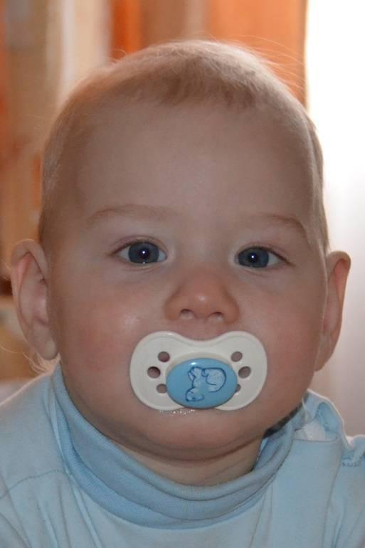 Косоглазие у новорождённых: причины, методы лечения oculistic.ru косоглазие у новорождённых: причины, методы лечения