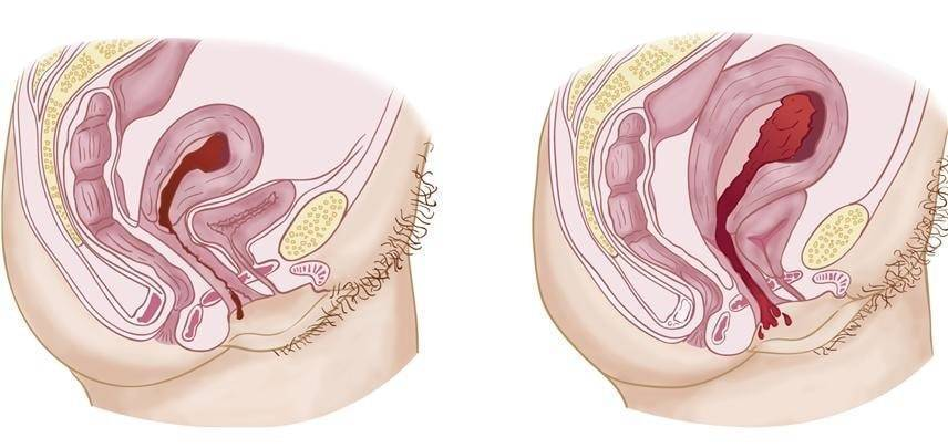 Все по местам! опущение половых органов после родов. выпадение шейки матки после родов