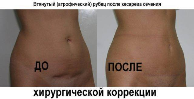 Сколько болит живот после кесарева: почему длятся боли от 1 до 4 месяцев