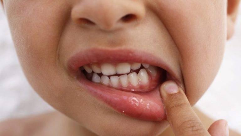 Стоматиты у детей: виды, причины появления, фото