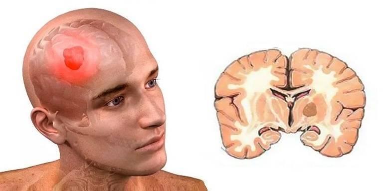 Органическое поражение головного мозга у детей — что это такое, каковы симптомы?
