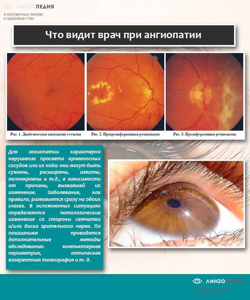 """Ангиопатия сетчатки у ребенка: причины возникновения патологии и способы лечения - """"здоровое око"""""""