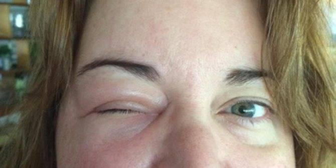 Укусил комар и опух глаз у ребенка: что можно и нельзя делать родителям после нанесения вреда мошками и другими насекомыми?