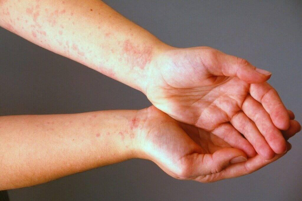 Аллергия у ребенка - причины, виды, признаки, методы терапии и профилактика