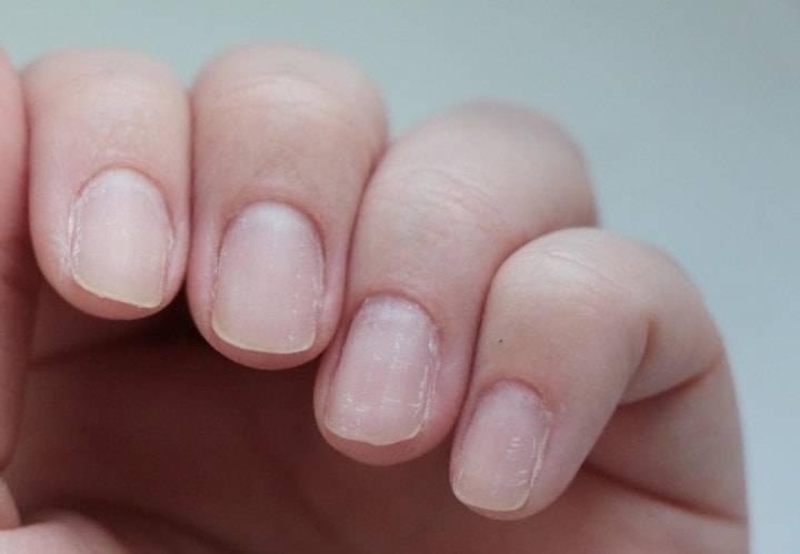 Что делать, если у ребёнка слоятся ногти на руках?