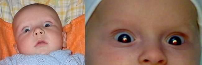 Доброкачественная внутричерепная гипертензия у взрослых и детей