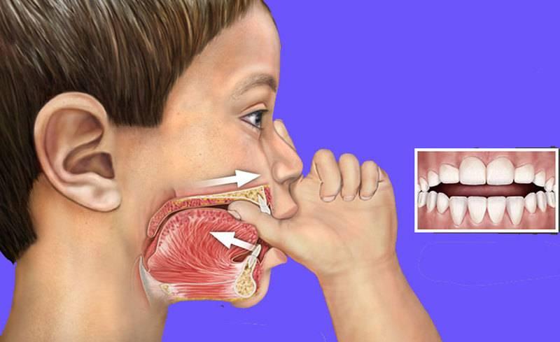 Почему у ребенка открыт рот