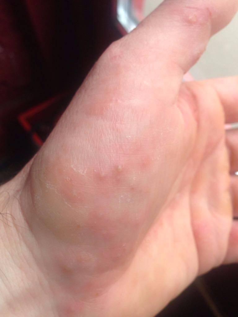 Сыпь на ладонях: фото, причины, лечение | заболевания кожи