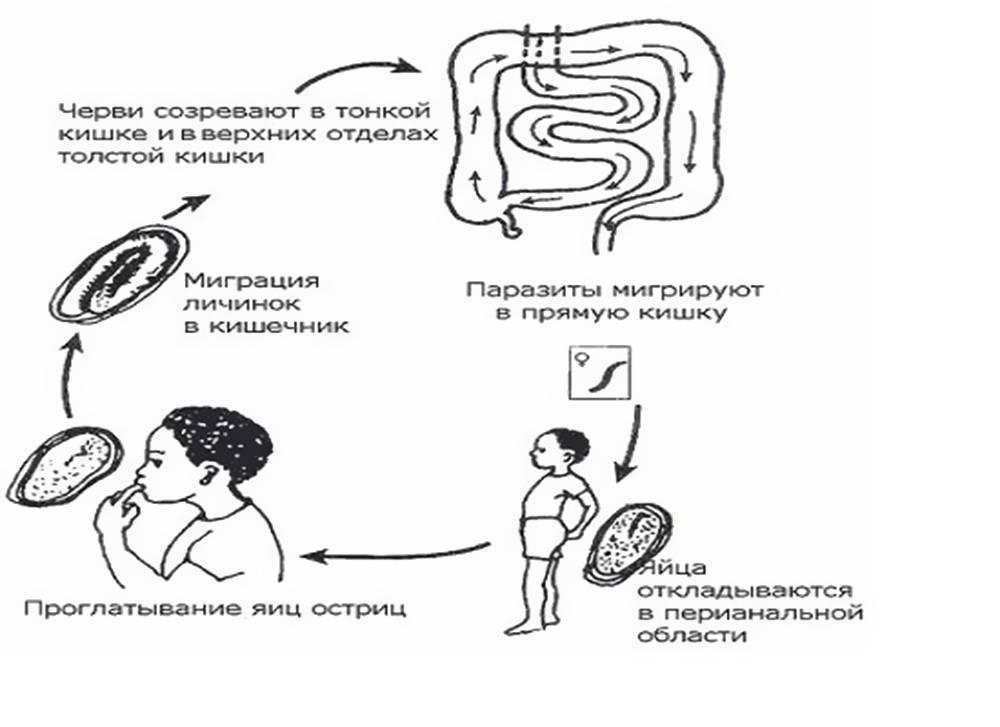 Энтеробиоз у детей (26 фото): симптомы и лечение, осложнения и обследования, диагностика и профилактика