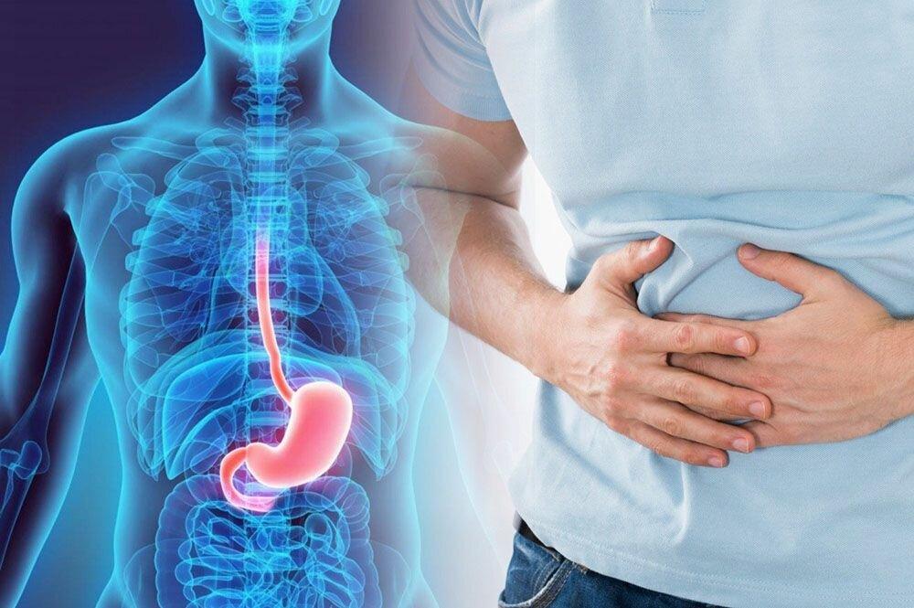 Синдром раздраженного кишечника у новорожденного симптомы и лечение