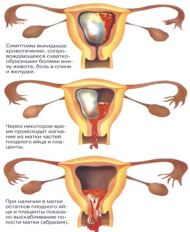 Матка после аборта: нормальные и патологические изменения