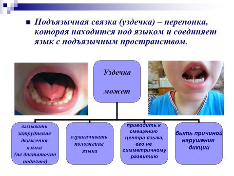 Короткая уздечка языка у ребенка: анкилоглоссия у новорожденных и грудничков