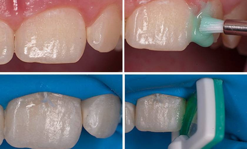 Фторирование зубов у детей: отзывы, глубокое вторирование, домашние методы