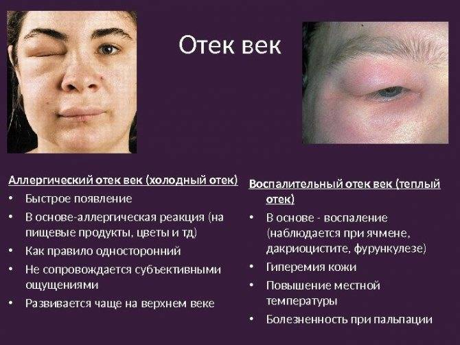 Отек квинке лечение: причины, симптомы, фото