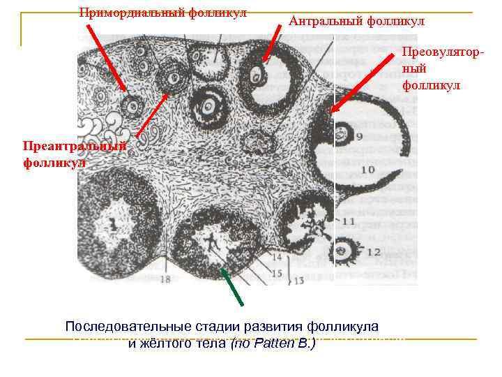Что такое мультифолликулярные яичники: симптомы и причины