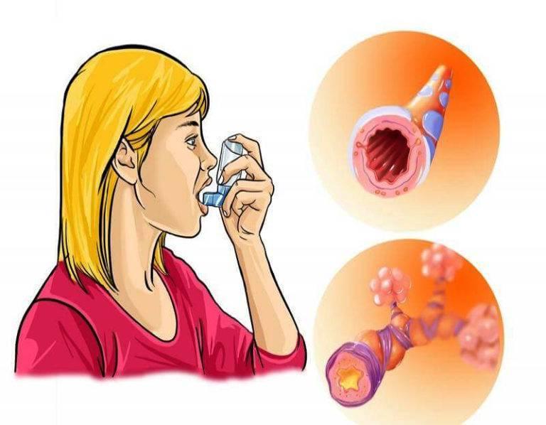 Бронхиальная астма у детей - первые признаки и проявление, формы и диагностика, симптомы и лечение
