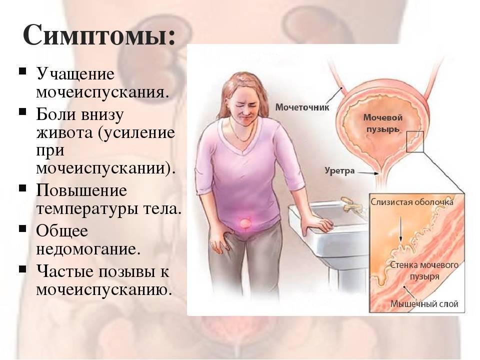 Боли при мочеиспускании при беременности: причины