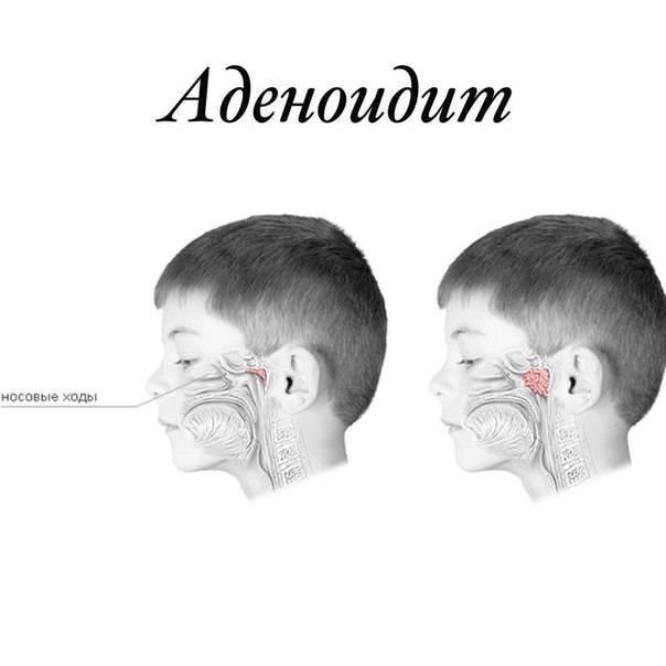Гипертрофия аденоидов 3 степени у детей: чем опасно и можно ли обойтись без операции