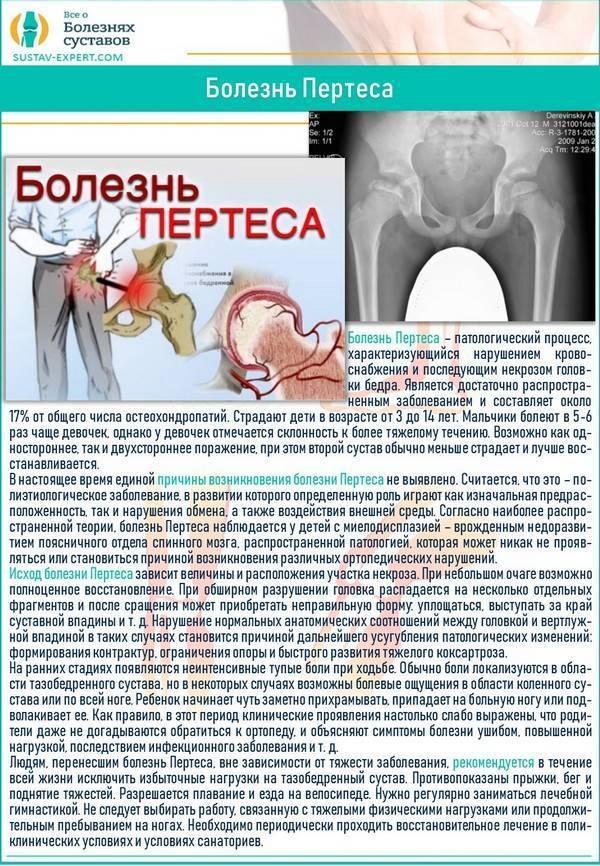 Болезнь легга кальве пертеса тазобедренного сустава у детей и взрослых: симптомы, лечение, стадии