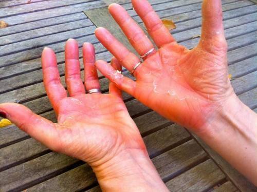 Облазит кожа на пальцах рук и ног у ребенка - причины шелушения и растрескивания, лечение