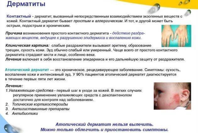 Как выглядит дерматит у детей на начальной стадии лечение фото