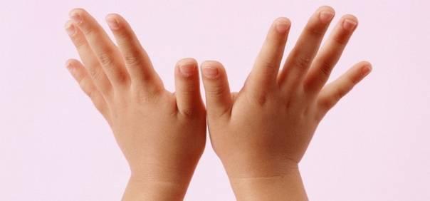 ✅ болезнь нотта: лечение стенозирующего лигаментита у взрослых и детей. болезнь нотта у детей - zapis-na-priem.ru