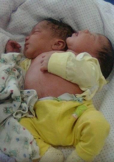На каком сроке рождается двойня, во сколько недель двойняшки считаются доношенными? - wikidochelp.ru