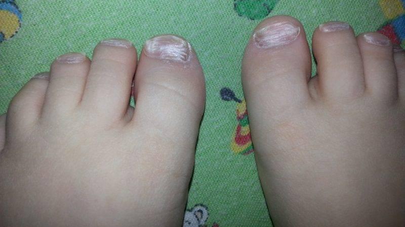Слоятся ногти на ногах (11 фото): почему отслаиваются, ломаются или крошатся ногти у детей и женщин и что с этим делать?