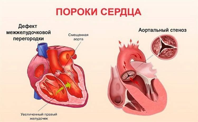 Шумы в серце у ребенка – причины, лечение
