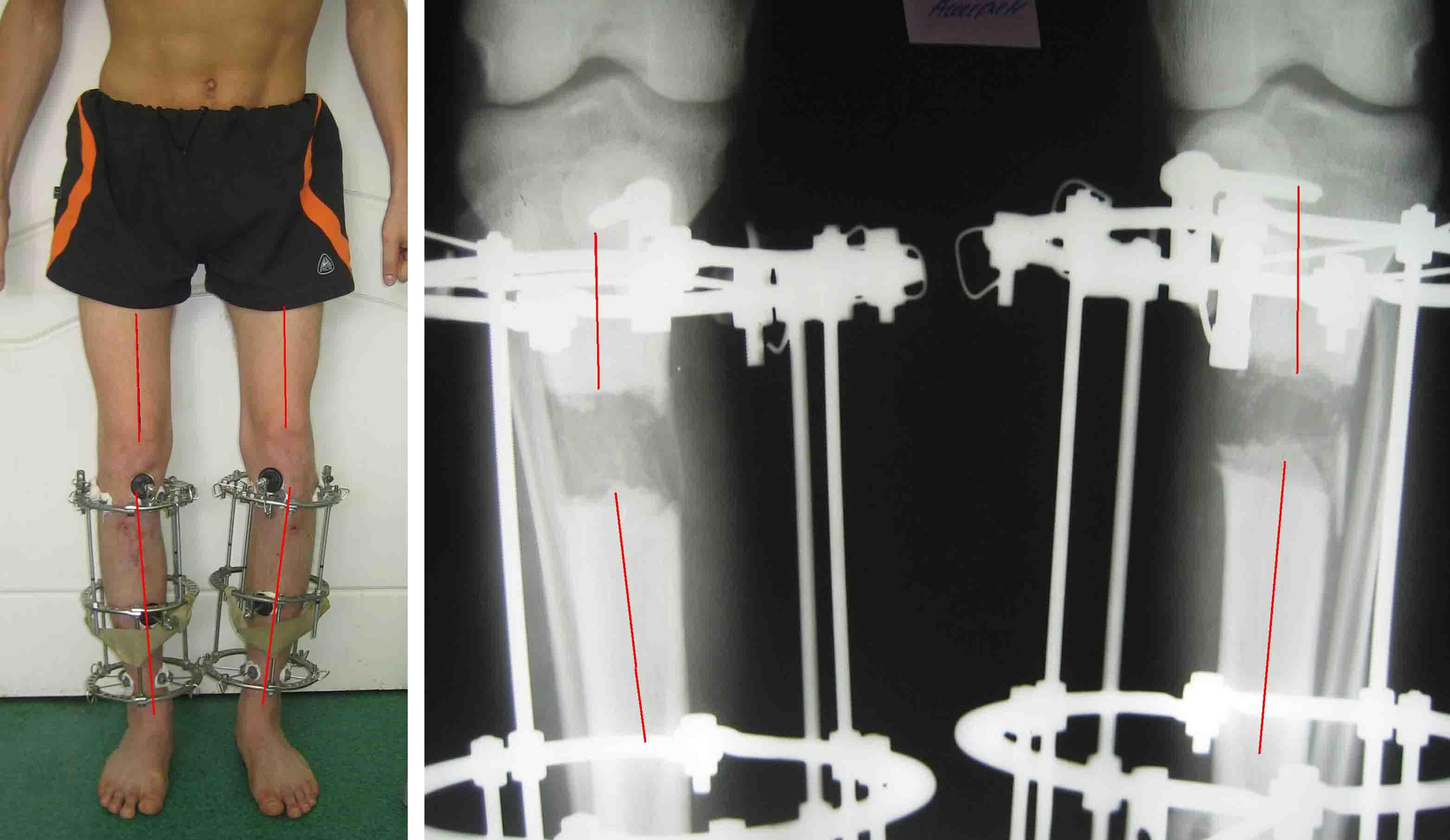 Вальгусная деформация коленных суставов у ребенка массаж видео