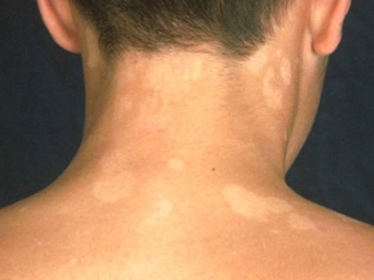 Белый лишай у ребенка: фото и симптомы, лечение на лице и других частях тела