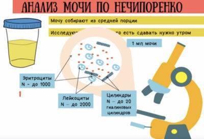 Проба сулковича у детей: как собирать анализ мочи у грудничков, расшифровка