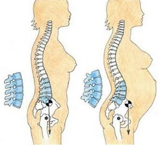 Беременность и остеохондроз позвоночника