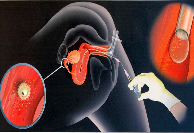 Можно ли забеременеть от выделений мужчины: вероятность зачатия от смазки, предсеменной жидкости, слизи