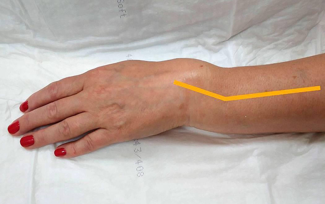 Симптомы перелома руки у ребенка со смещением и без, методы диагностики и лечения