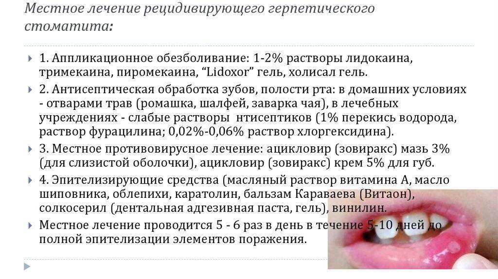Вирусный стоматит у детей: симптомы и лечение