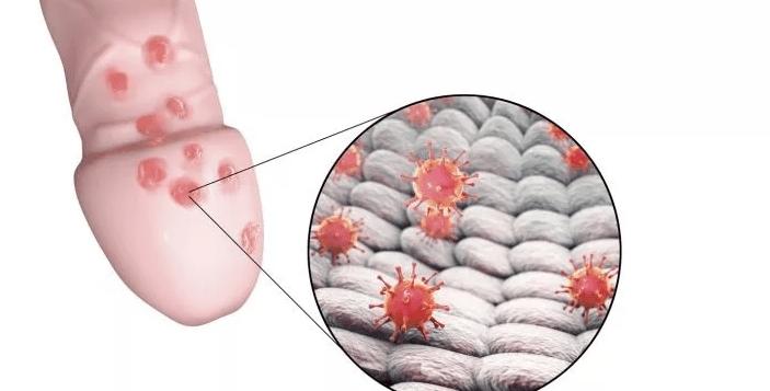 Симптомы и диагностика кандидоза кишечника. кандидоз кишечника симптомы при молочнице сильный метеоризм