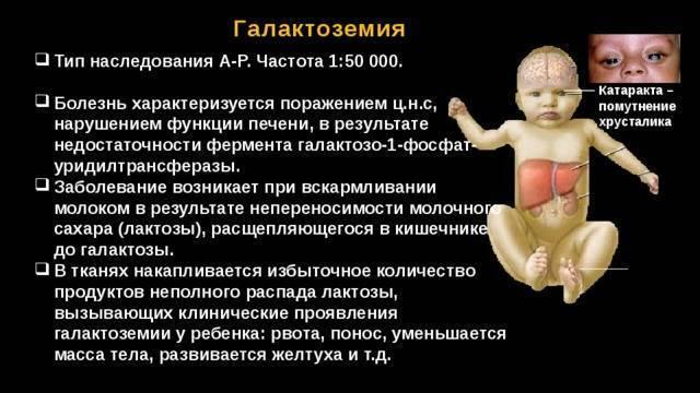 Галактоземия - симптомы, анализ, у новорожденных