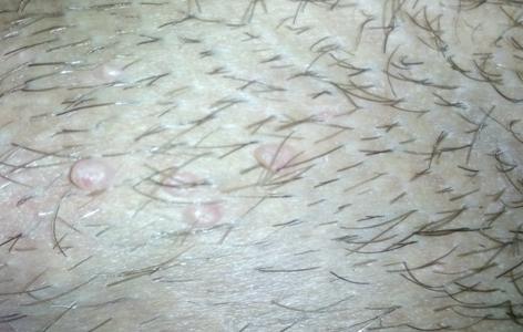 Сыпь у детей на яичках фото